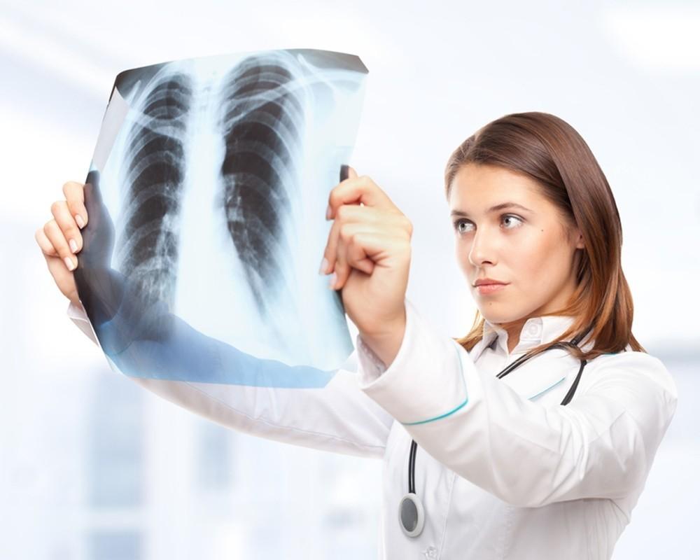 Туберкулез и ВИЧ-инфекция: продолжительность жизни. Туберкулез на фоне ВИЧ-инфекции: клинические рекомендации