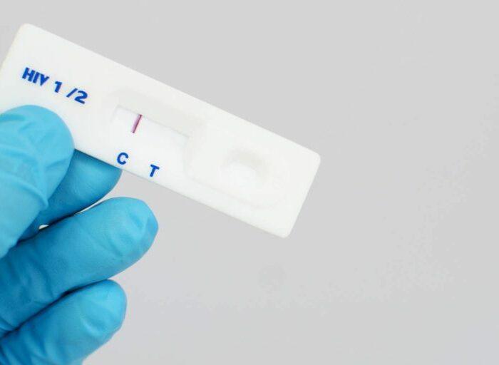 Причины ложноотрицательного теста на ВИЧ инфекцию