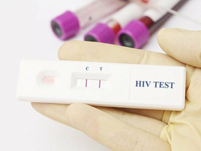 Ложноположительный результат теста на ВИЧ: причины